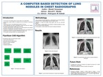 A Computer Based Detection of Lung Nodules in Chest