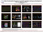 Role of axial patterning genes in growth regulation during eye development by Neha Gogia