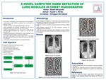 A novel Computer Aided Detection for identifying lung nodules on chest radiographs